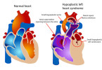 Congenital heart disease - causes, symptoms and treatment