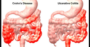 Crohn's disease - causes, symptoms and treatment