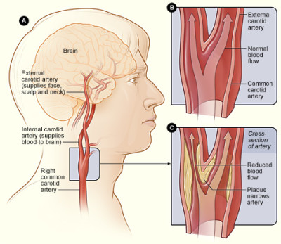Decoding the results of the ultrasound examination of the neck