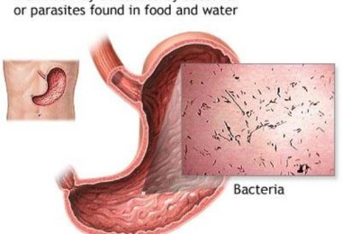 Diarrhea - causes, symptoms and treatment