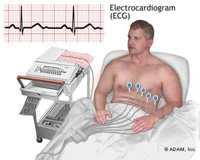 ECG diagnosis of heart