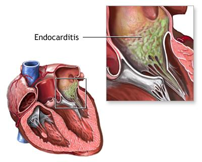 Endocarditis - causes, symptoms and treatment