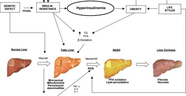 Fatty liver disease - causes, symptoms and treatment