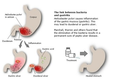 Gastritis - causes, symptoms and treatment
