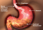 Gastroesophageal reflux - causes, symptoms and treatment