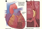 Heart disease - causes, symptoms and treatment