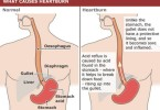 Heartburn - causes, symptoms and treatment