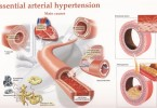 Hypertension - causes, symptoms and treatment
