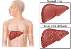 Liver cirrhosis - causes, symptoms and treatment