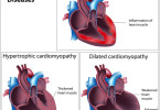 Myocarditis - causes, symptoms and treatment