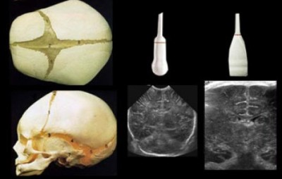 Neurosonography - ultrasound of the head