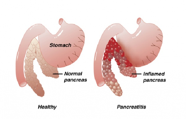 "pancreatitis - causes, symptoms and treatment | health care ""qsota, Human Body"