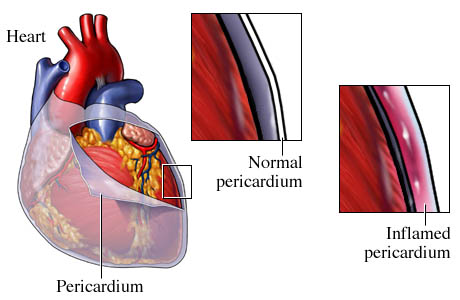Pericarditis - causes, symptoms and treatment