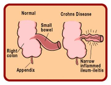 crohn s disease Crohn's disease can cause inflammation in any area from the mouth to the anus read about medicines, surgery or dietary management to treat symptoms.