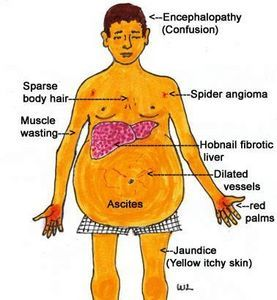 Symptoms of cirrhosis of the liver