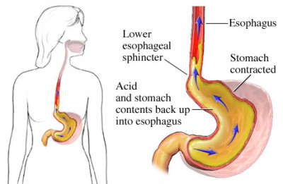 Symptoms of gastroesophageal reflux