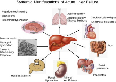 Symptoms of liver failure