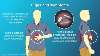 Symptoms of pancreatitis