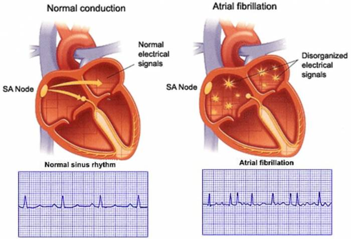 The cardiac arrhythmias - causes, symptoms and treatment