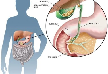 The gallstones - causes, symptoms and treatment