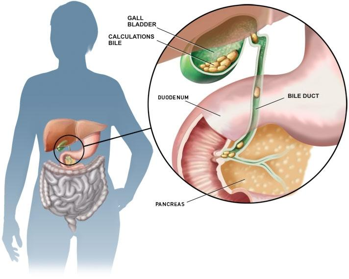 "gallstones - causes, symptoms and treatment | health care ""qsota, Human Body"