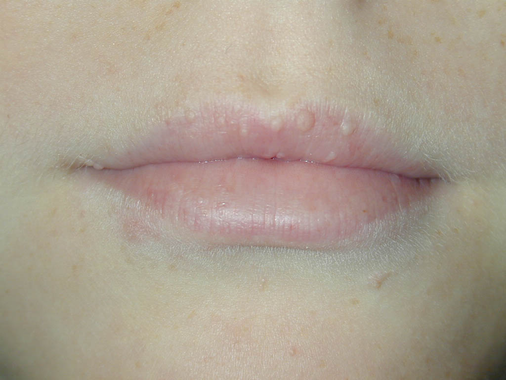 Pin white coating on tongue causes symptoms treatment pictures on