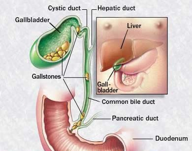 Treatment of gallstone disease