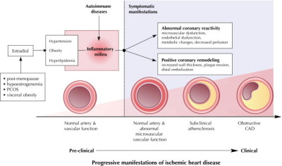 Types of ischemic heart disease