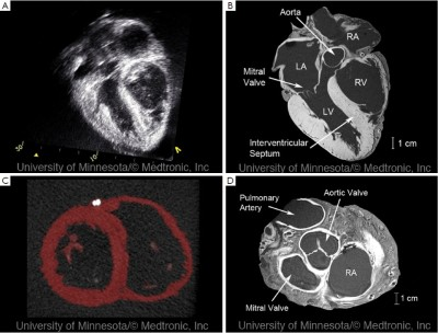 Ultrasound of the heart during fetal exposure