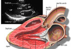 Ultrasound of the heart - what is it, how is the diagnostic