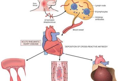 Acute rheumatic fever - causes, symptoms and treatment