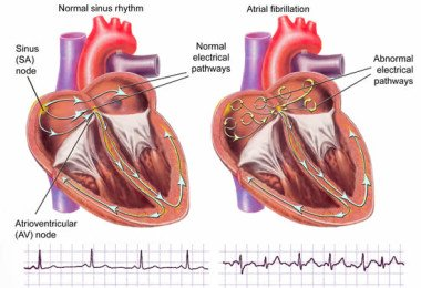 Arrhythmia of the heart - what to do when a cardiac arrhythmia