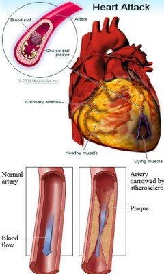 Causes and symptoms of diseases of the arteries