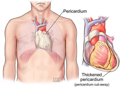 Causes of pericarditis