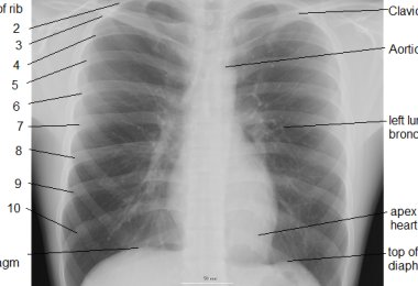 Chest x - ray-how often should I do and how is the survey