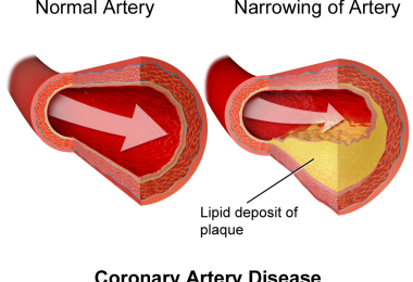 Coronary heart disease - causes, symptoms and treatment