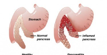 Pancreatitis - causes, symptoms and treatment