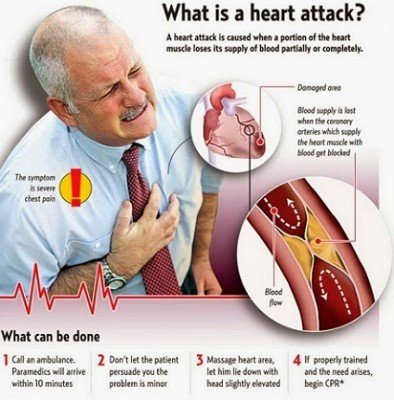 Symptoms and diagnosis of heart attack