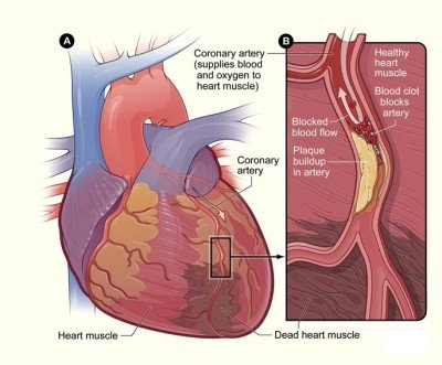 Treatment of heart attack
