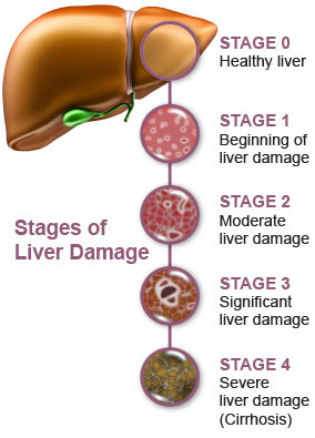 Treatment of liver failure
