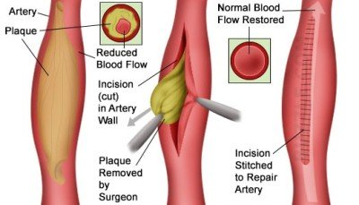 Treatment of the arteries
