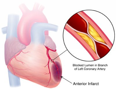 What is a myocardial infarction