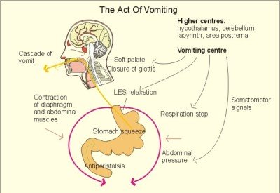 What to do if vomiting