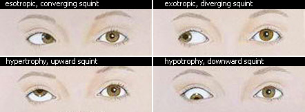 paralytic strabismus