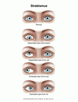 Diagnosis and treatment of strabismus in a child