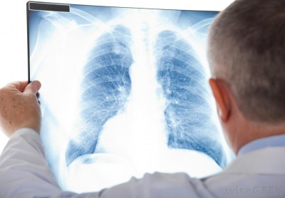 Possible complications and side effects after x-rays