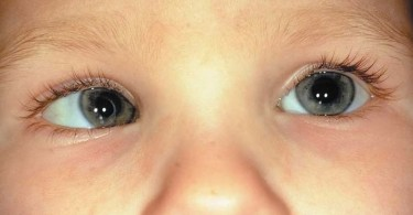 Strabismus treatment - what to do if your child has strabismus