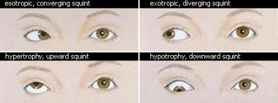 Causes of strabismus in children