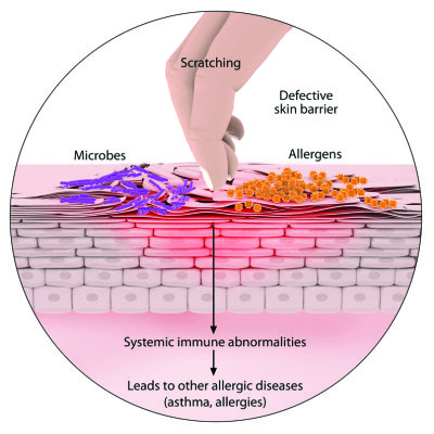 Causes of allergic dermatitis