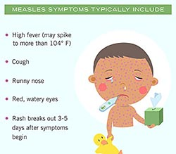 Symptoms of measles
